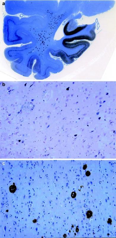 The Cerebral Cortex And Complex Cerebral Functions Springerlink