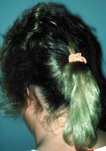 Entwicklung der Haare   SpringerLink