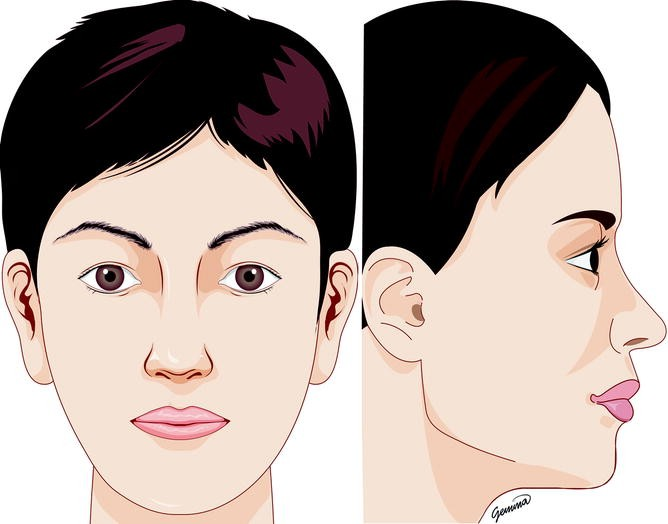 Secondary Rhinoplasty in the Middle Eastern Patient | SpringerLink