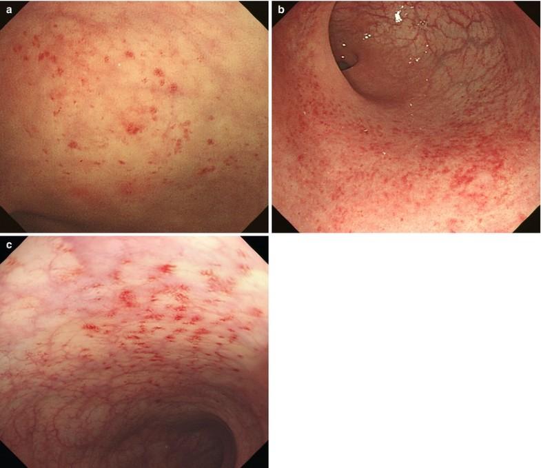 Colonoscopic findings after treatment. (A) Colonoscopy ...  |Abnormal Colonoscopy
