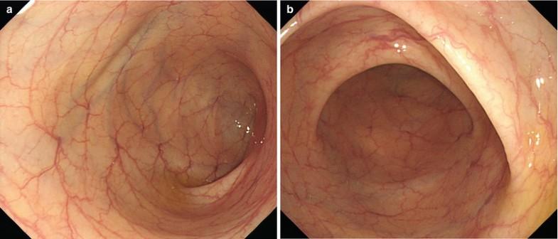 (A) Colonoscopy shows abnormal colonic mucosa with ...  |Abnormal Colonoscopy