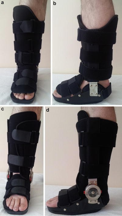 Tendon and Ligament Pathologies Around the Foot and Ankle: Types of