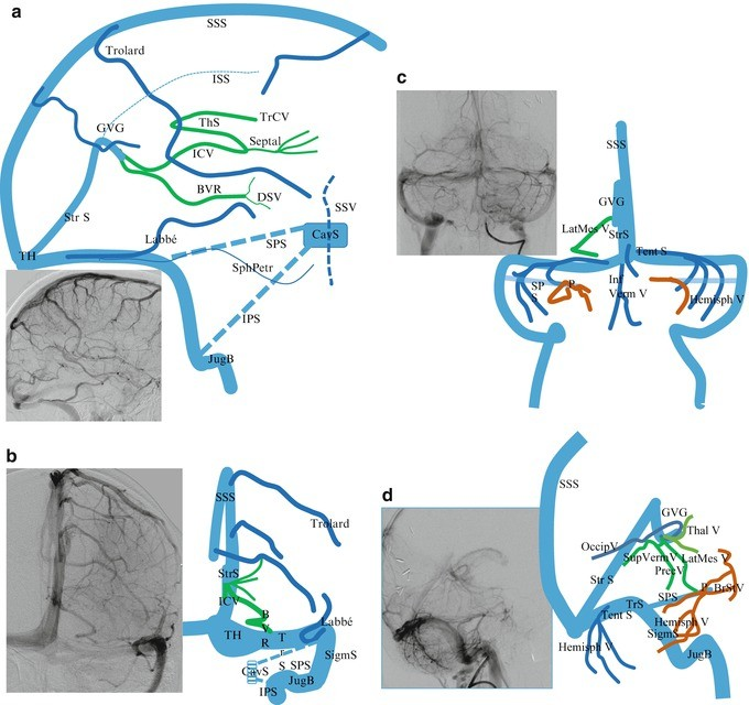 Encephalic Venous Drainage Understanding Anatomy And Pathology From