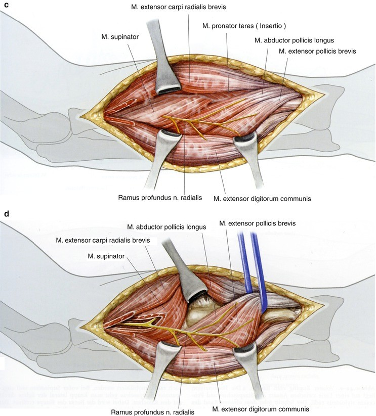 Gemütlich Axialer Bereich Anatomie Fotos - Menschliche Anatomie ...
