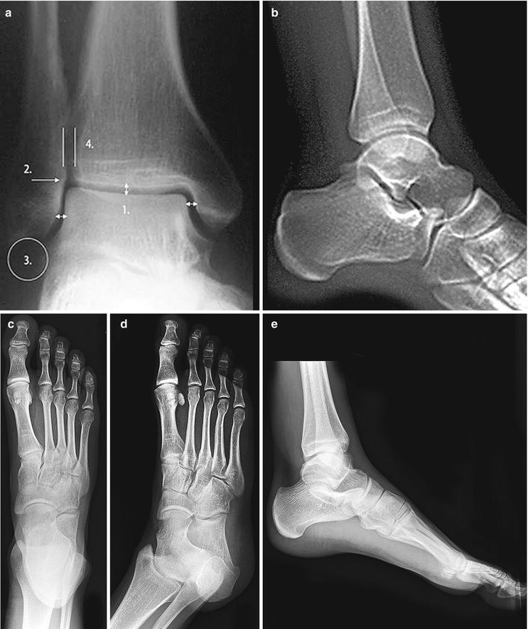 Foot and Ankle Injuries | SpringerLink