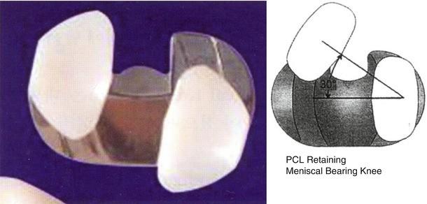 Implant Selection | SpringerLink