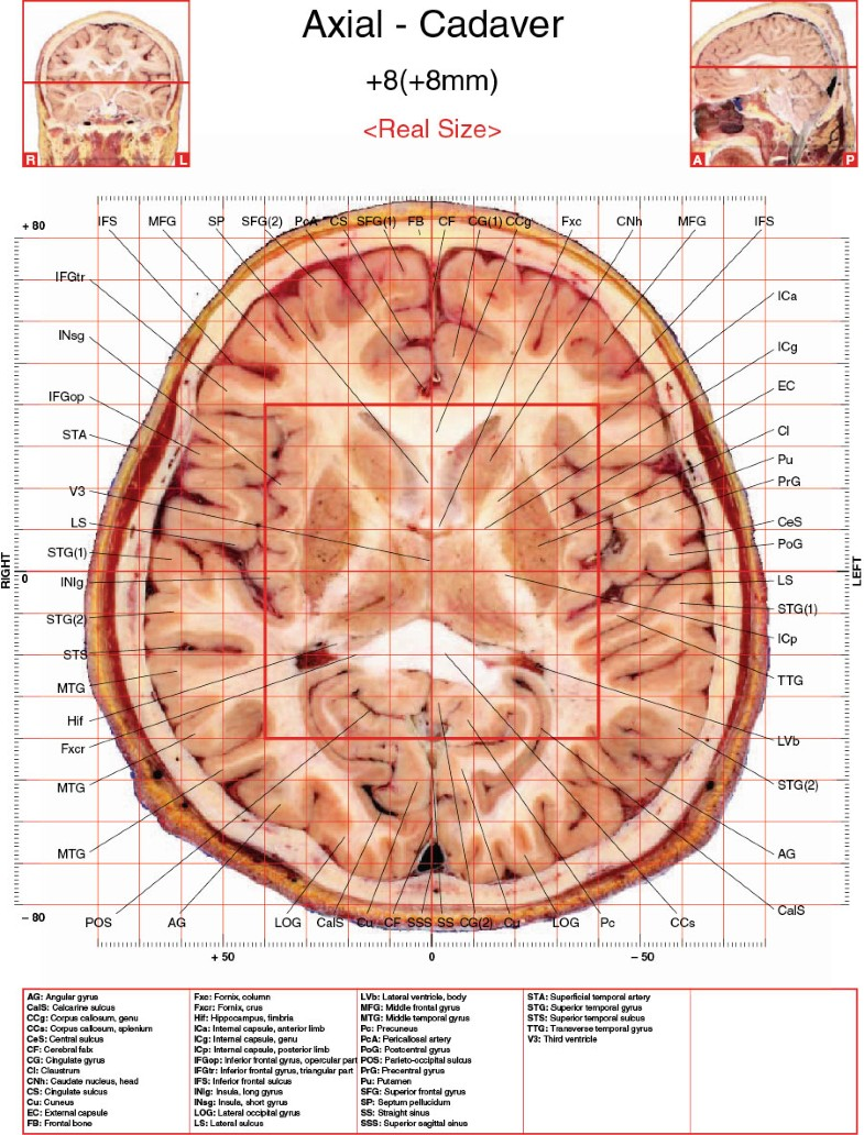 Axial Images of Cadaver and Human Brain of 7.0 T MRI In Vivo ...