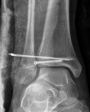 Salter Orthopedics Ebook