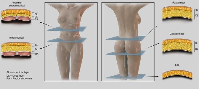 Fat Anatomy, Metabolism, and Principles of Grafting   SpringerLink