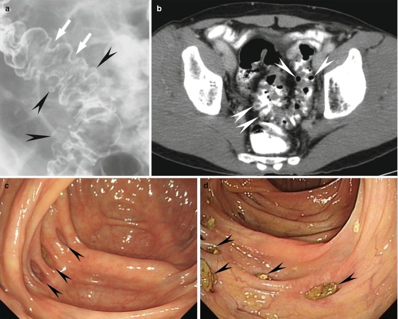 Inflammatory and Infectious Disease of the Colon ...