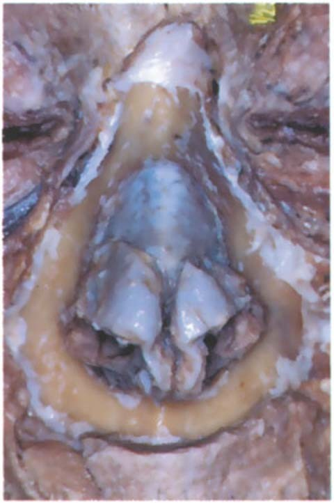 Surgical Anatomy of the Nose, Paranasal Sinuses, and Pterygopalatine ...