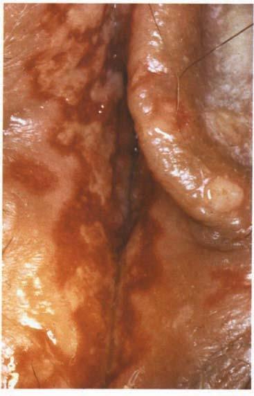 Genitalia herpes Herpes Genitalis: