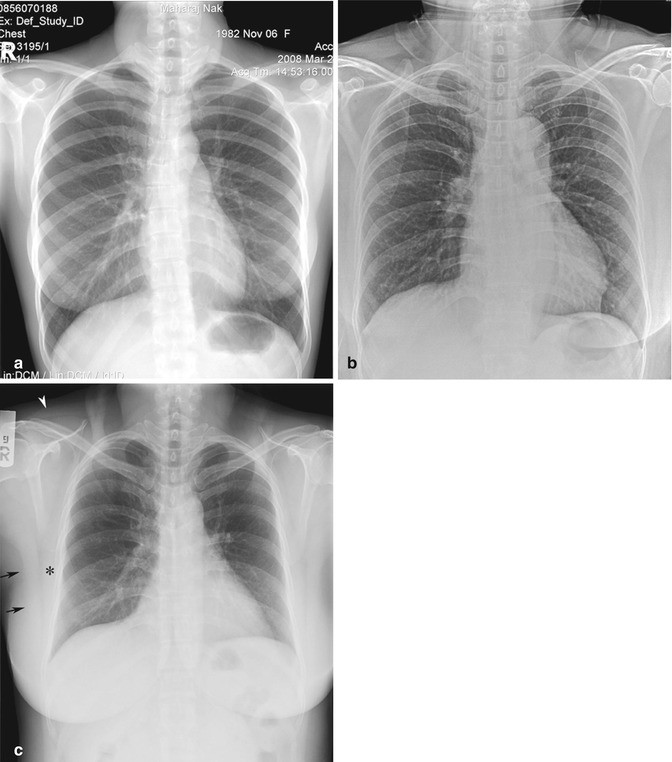 Chest Including Lungs and Mediastinum | SpringerLink