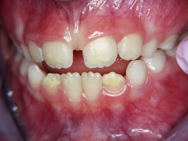 Molar Incisor Hypomineralization and Hypomineralized Second