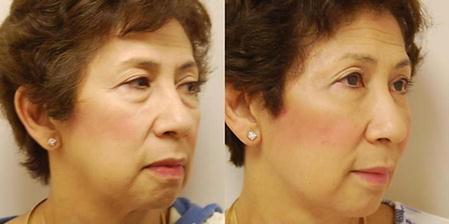 Facial Rejuvenation: A Chronology of Procedures | SpringerLink