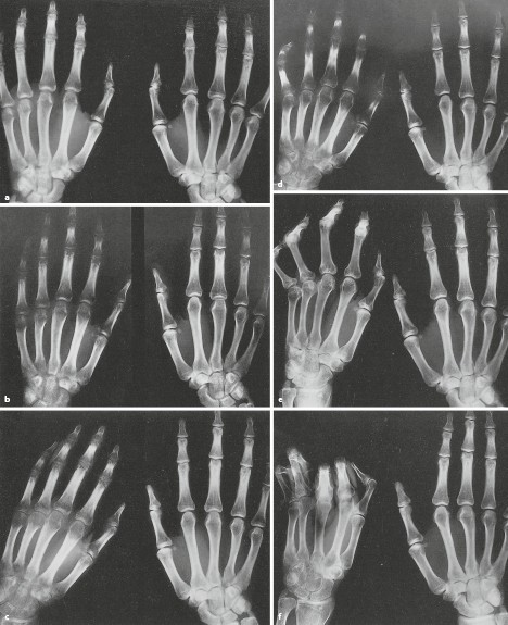 Perfusionsstorungen Des Knochens Und Knochenmarks Springerlink