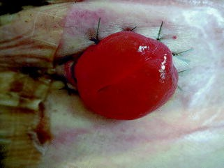 Komplikationen Bei Stoma Springerlink