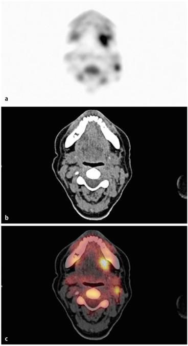 Kopf-Hals-Tumoren   SpringerLink