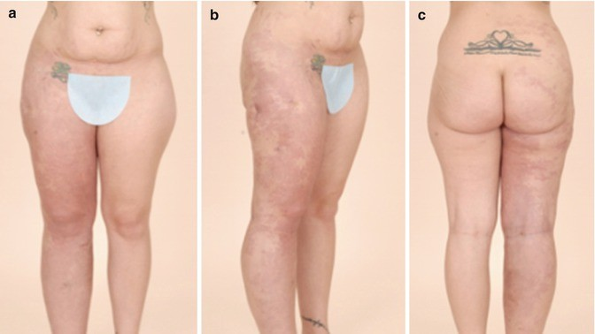 Fat Embolism After Liposuction in Klippel-Trenaunay Syndrome