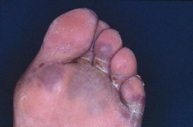 Herpes genitalis symptome mann