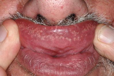 Lippe flecken auf der Pigmentfleck auf