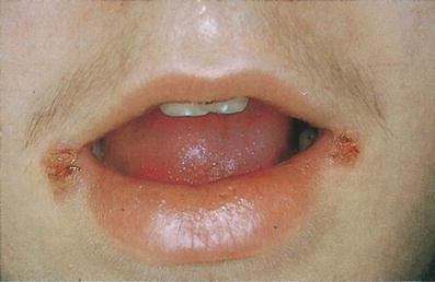 bluterguss zunge