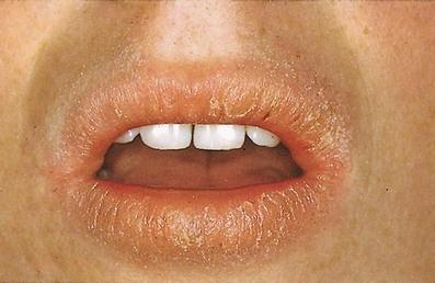 Lippen roter rand entzündete Brennende Lippen