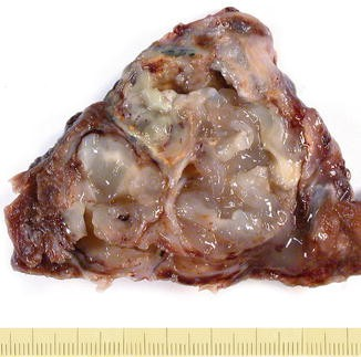 Lung Tumors | SpringerLink