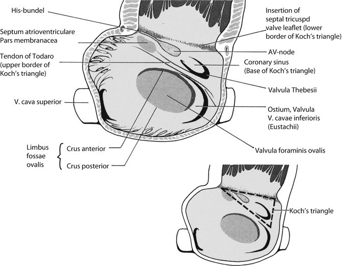 Anomalous Pulmonary Venous Connections and Congenital Defects of the ...