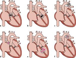 Art Heart 668*611 transprent Png Free Download - Heart, Line, Petal. -  CleanPNG / KissPNG