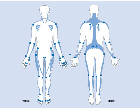 zervikalsyndrom krankschreibung