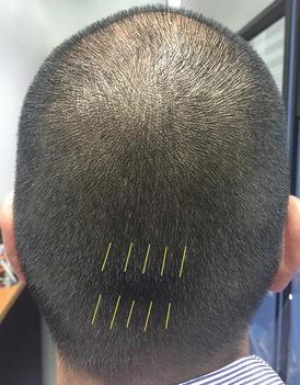 Hair Alignment in Donor Closure | SpringerLink