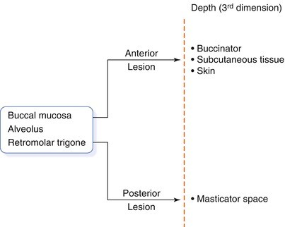 Tumors of the Buccal Mucosa and Alveolus | SpringerLink