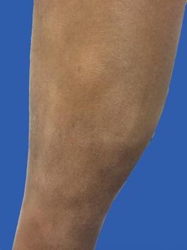 Differential Diagnosis Of Vitiligo In Brown Skin Springerlink