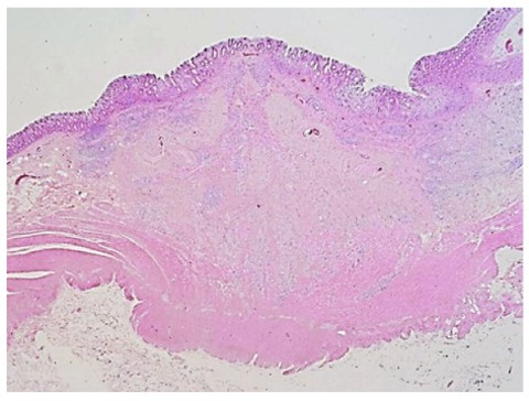 A Small Non Polypoid Advanced Colon Cancer 8mm In Size Springerlink