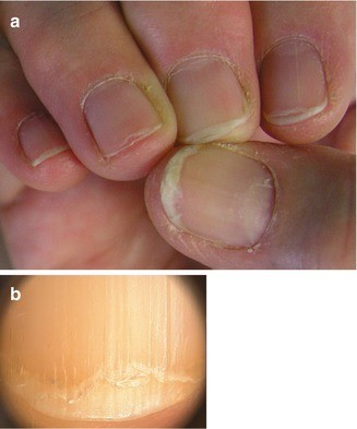 Nail Disorders Due to Environmental, Professional, and