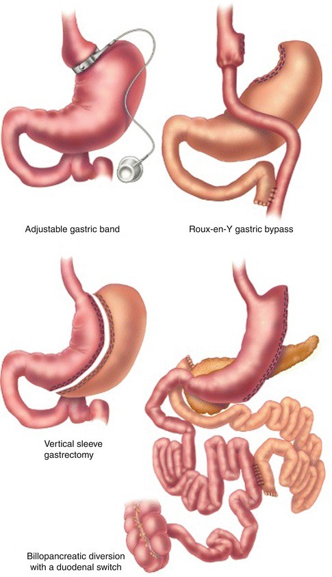 Endoscopic Treatment of Anastomotic Complications After Bariatric ...