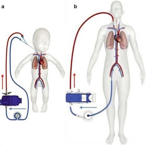 Materials cannulas pumps oxygenators springerlink open image in new window fandeluxe Choice Image