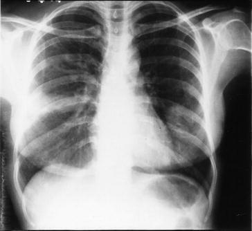 How to Diagnose Allergic Bronchopulmonary Aspergillosis | SpringerLink