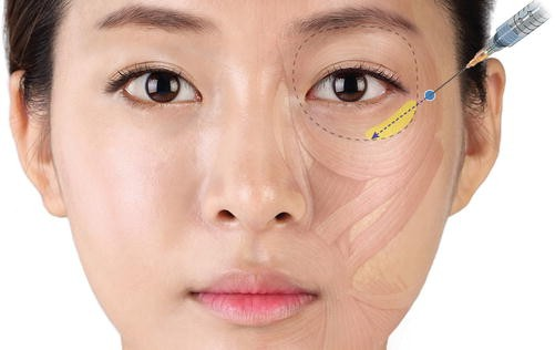 Clinical Anatomy of the Midface for Filler Injection