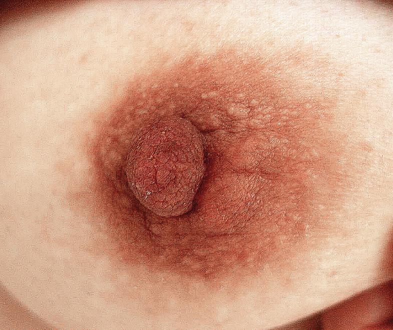 Tumors of the Skin | SpringerLink