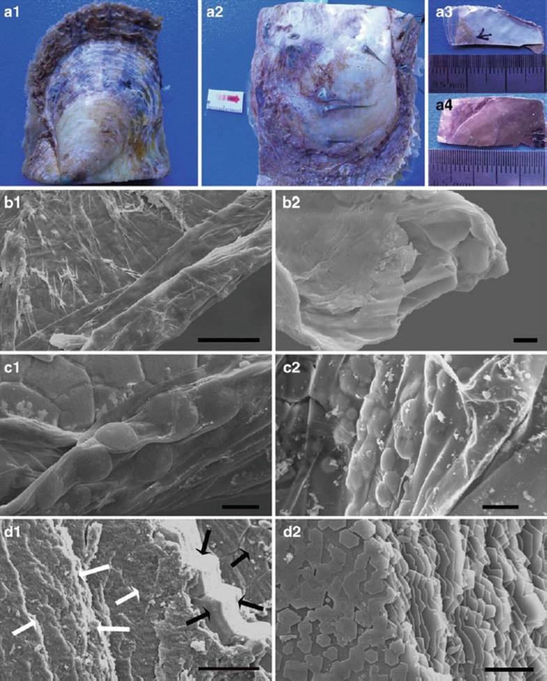 Identification and Characterization of Biomineralization