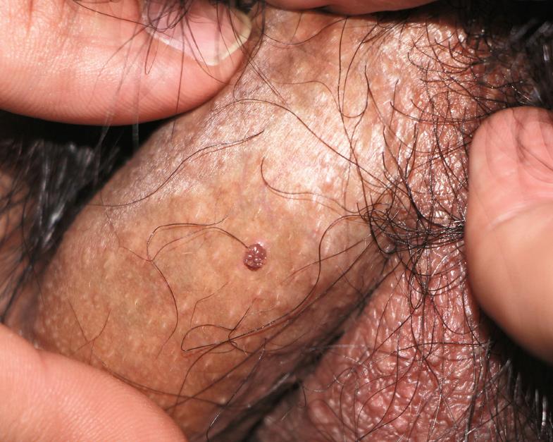 Pseudo condilom. Ginecologie MGVI LR
