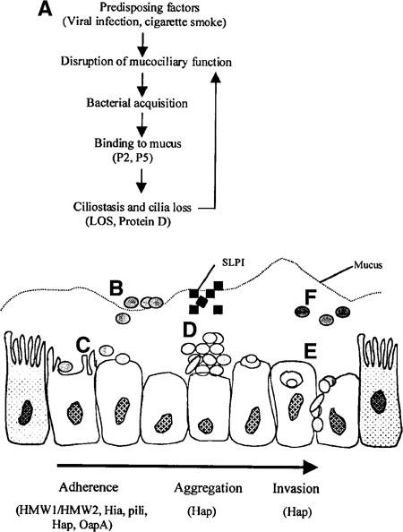 The Pathogenesis of Disease Due to Nontypeable Haemophilus