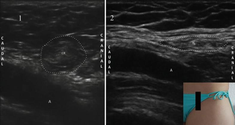 Genitofemoral Nerve Entrapment: Abdominal | SpringerLink