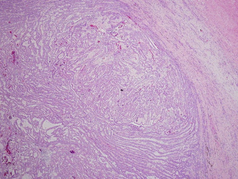 Renal Mucinous Tubular and Spindle Cell Carcinoma, Fig. 1