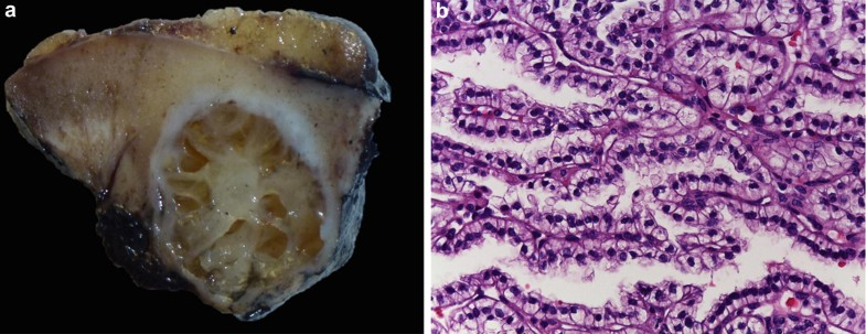 Clear Cell Papillary Renal Cell Carcinoma, Fig. 1