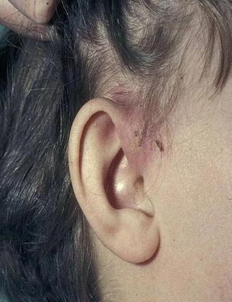 Sinus, Preauricular   SpringerLink