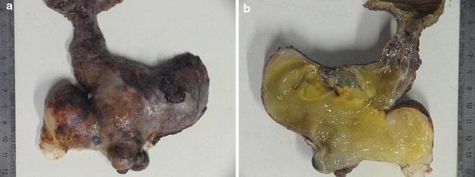 Mucocele, Appendix, Fig. 1