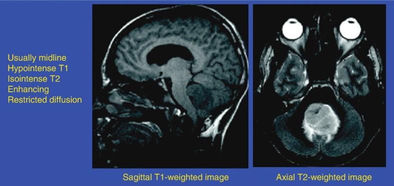 Primitive Neuroectodermal Tumor, Fig. 1